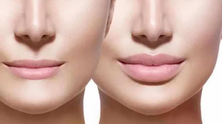 Filler labbra controindicazioni