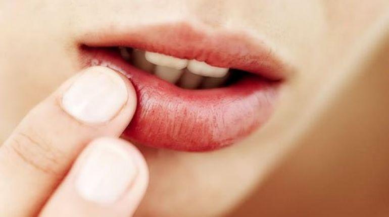 Labbra screpolate : rimedi