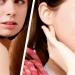 Perché preoccuparsi per una cicatrice? Mederma Gel Topico per cicatrici
