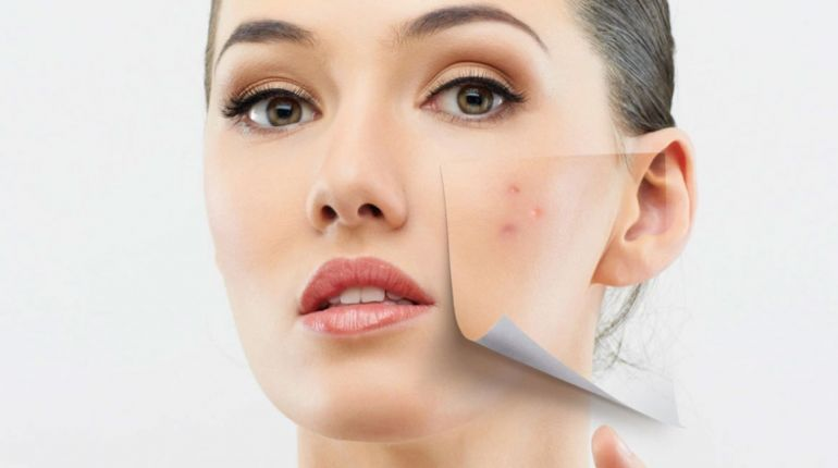 Triacneal dell' Avene per le pelli con brufoli e acne